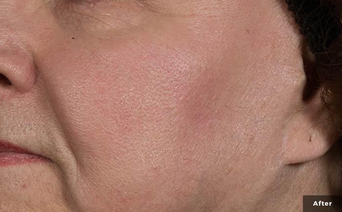 vascular-lesions-face